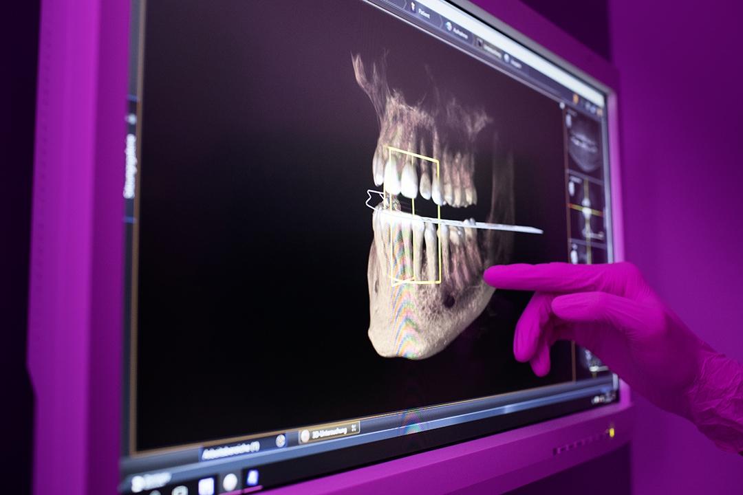 mkgChirurgikumLingen-therapiespektrum-Mund-und-Kieferchirurgie-roentgenaufnahmen